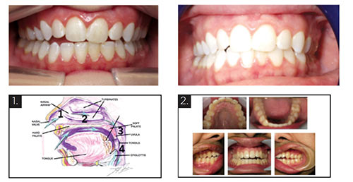 diagram and pictures of teeth