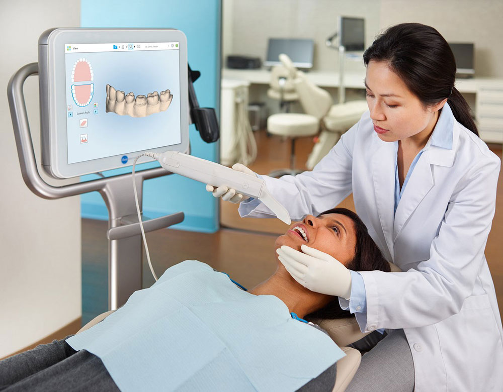 the itero intraoral scanning device